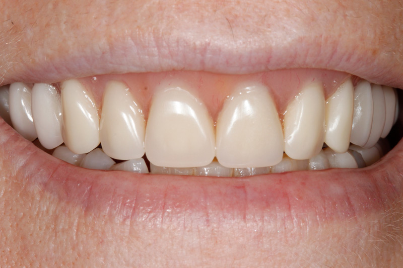 Damaged-Teeth-replaced-with-Dentures-closeup-after